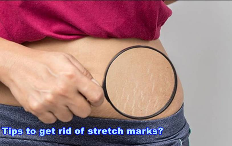 10 tips to get rid of stretch marks